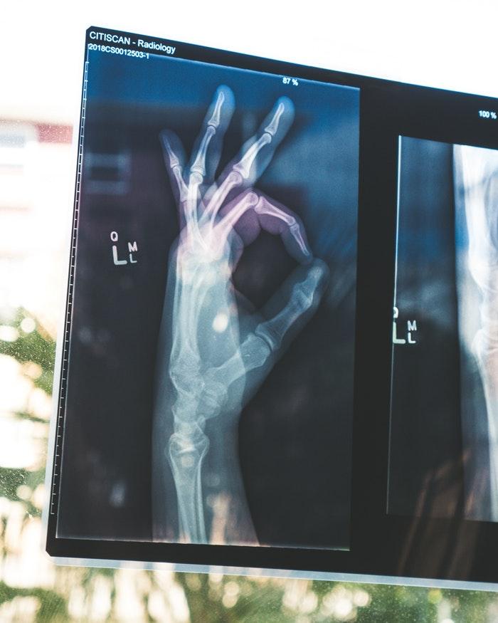mei-scan-laten-maken-gezondheid-puurvangeluk